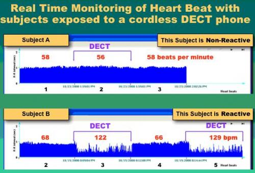 dect heart disruption